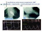insufici ncia mitral severa complicando vmp hipotens o taquicardia ventriculariza o da curva de ae