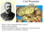 carl wernicke 1874