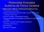 potenciales evocados auditivos de tronco cerebral2