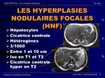 l es hyperplasies nodulaires focales hnf
