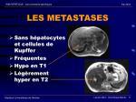 les metastases