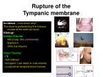 rupture of the tympanic membrane