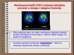 marihuana ha i thc mijenja kemijske procese u mozgu i njegovu funkciju