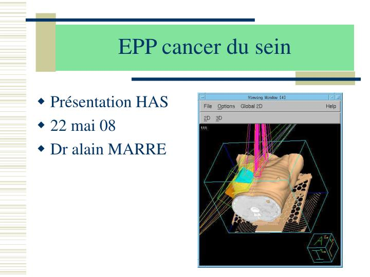 epp cancer du sein n.