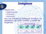 im genes4
