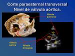 corte paraesternal transversal nivel de v lvula a rtica