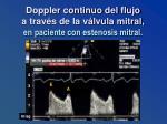 doppler continuo del flujo a trav s de la v lvula mitral en paciente con estenosis mitral