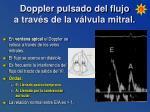 doppler pulsado del flujo a trav s de la v lvula mitral