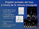 doppler pulsado del flujo a trav s de la v lvula tric spide