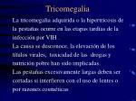 tricomegalia