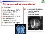 thromboses veineuses c r brales2