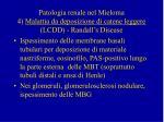 patologia renale nel mieloma 4 malattia da deposizione di catene leggere lcdd randall s disease