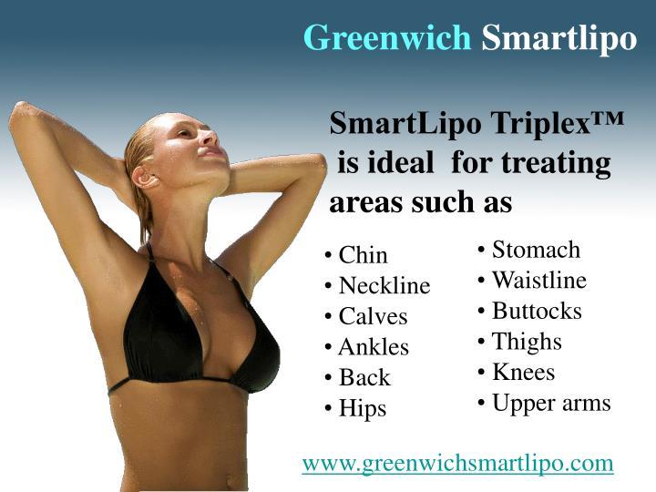 Greenwich smartlipo3