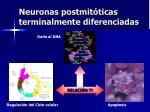 neuronas postmit ticas terminalmente diferenciadas2