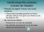ventriculografia card aca locais de inje o1
