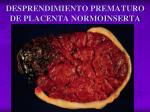 desprendimiento prematuro de placenta normoinserta1