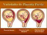 variedades de placenta previa