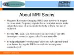 about mri scans