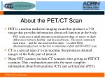about the pet ct scan