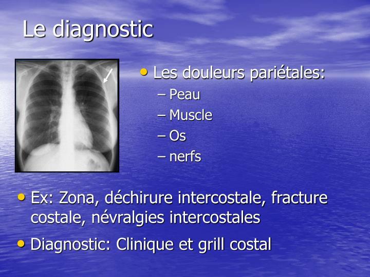 PPT - La douleur Thoracique PowerPoint Presentation - ID:954511