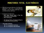 monitoreo fetal electr nico