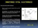 monitoreo fetal electr nico7