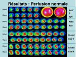 r sultats perfusion normale