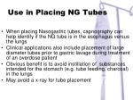 use in placing ng tubes