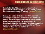 cupping used by the prophet