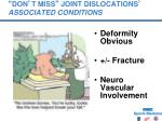 don t miss joint dislocations associated conditions