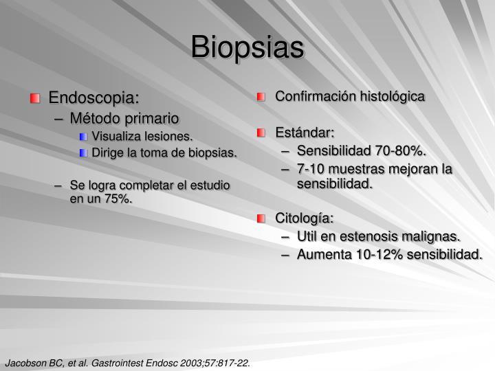 Endoscopia: