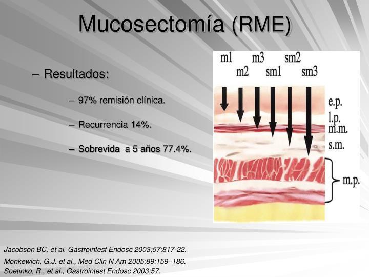 Mucosectomía