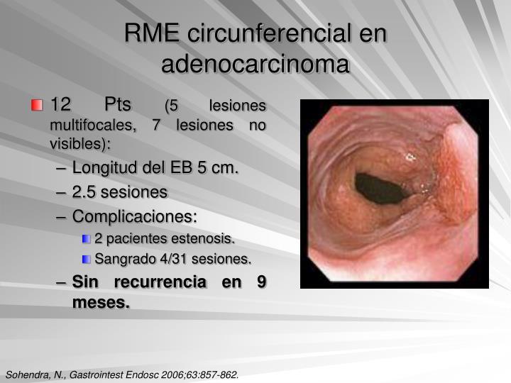 RME circunferencial en adenocarcinoma