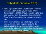 t berk loz verem tbc