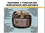 anatomia y funcion del marcapasos implantable
