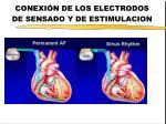conexi n de los electrodos de sensado y de estimulacion