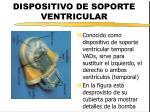 dispositivo de soporte ventricular
