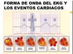 forma de onda del ekg y los eventos cardiacos