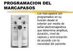 programacion del marcapasos