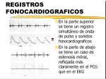 registros fonocardiograficos