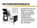 vectorcardiografia