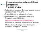 leucoencefalopat a multifocal progresiva virus jc bk
