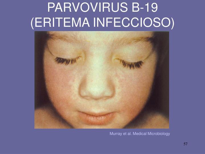 PARVOVIRUS B-19