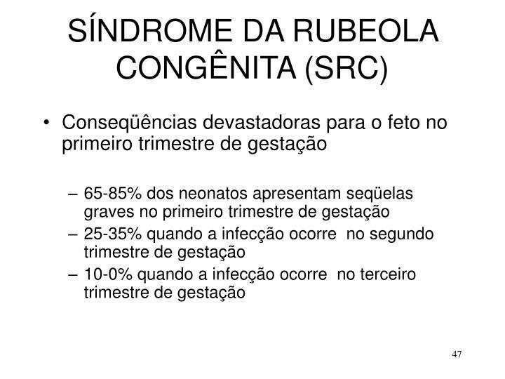 SÍNDROME DA RUBEOLA CONGÊNITA (SRC)