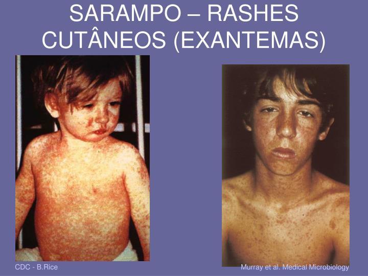 SARAMPO – RASHES CUTÂNEOS (EXANTEMAS)