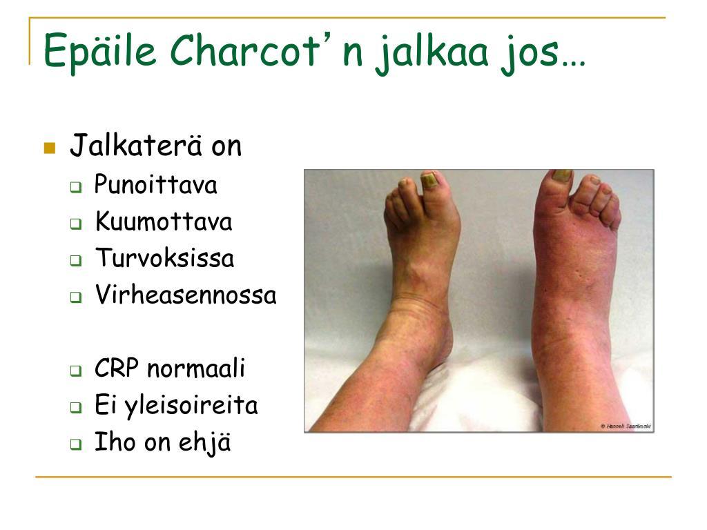 Diabeettinen Jalkahaava