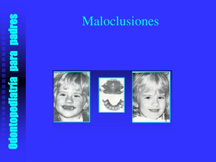 Maloclusiones