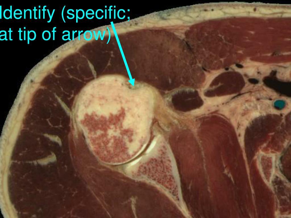 Identify (specific;