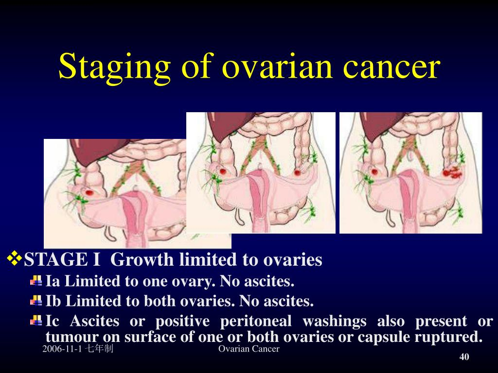 Ppt Ovarian Cancer Powerpoint Presentation Free Download Id 968652