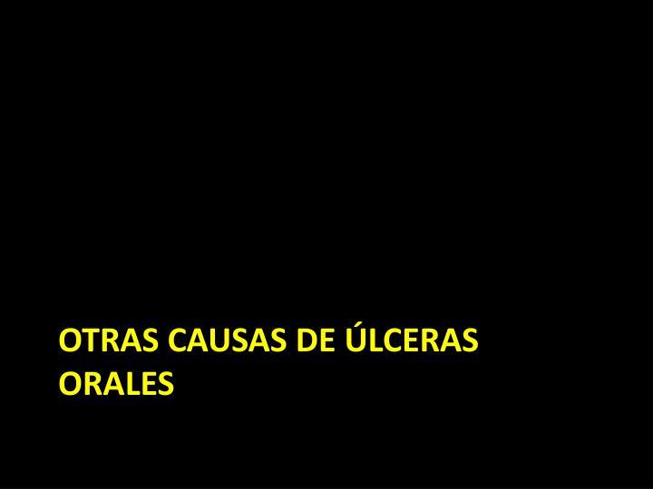 OTRAS CAUSAS DE ÚLCERAS ORALES